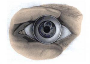 contactlens