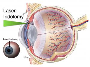 laseriridotomy